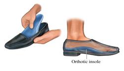 orthotics-250
